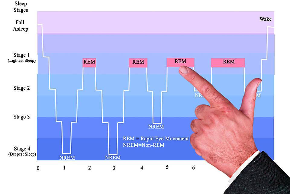 Kurve der Schlafphasen mit Markierung der Traumschlafphasen (REM).