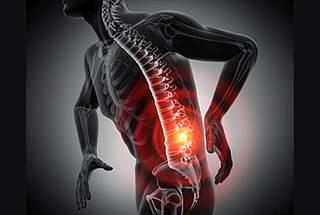 Bandscheibenvorfall - Grafik schematischer Mensch, Schmerzpunkt rot