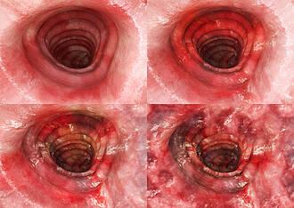 Colitis ulcerosa - Endoskopaufnahme - vier Stadien
