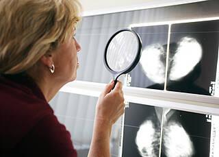 Brustkrebsrisiko bestimmen