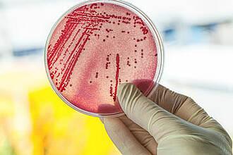Wissenschaftler haben unter hunderten Medikamenten ein neues gegen TB gefunden: Lansoprazol