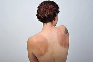 Sonnenbrand behandeln