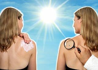 Hautkrebs:  Hinschauen kann Leben retten