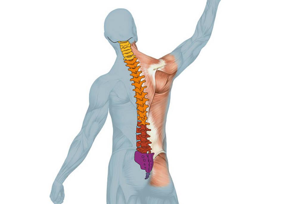 Rückenschmerzen zu oft mit Skalpell behandelt