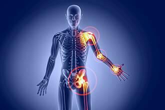 Rheuma: Graphische Körperdarstellung (blau) mit typischen Rheumaherden (orange))