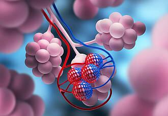 Bei bestimmten Formen von Lungenkrebs ist die Immuntherapie mit Keytruda platinbasierten Kombinations-Chemotherapien überlegen