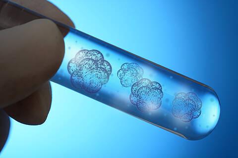 Lichtjahre besser als jeder Tierversuch: Charité-Forschern gelingt mittels ein Stammzellen ein spektakulärer Behandlungserfolg des Leigh Syndroms