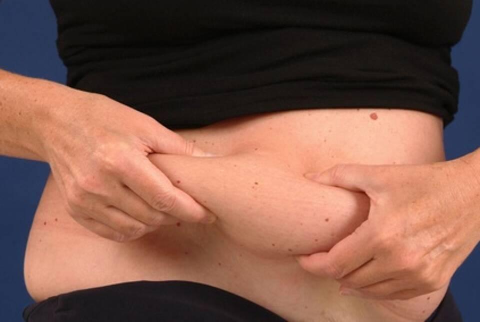 Bauchfett und Schlaganfallrisiko
