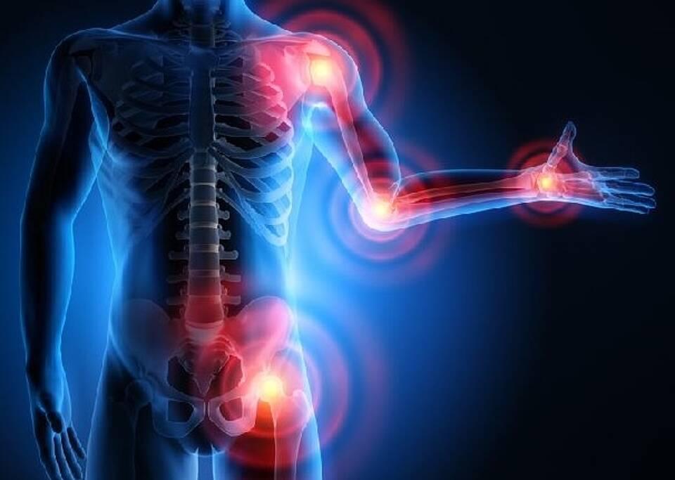 Naturheilkunde bei Rheumatoider Arthritis sinnvoll