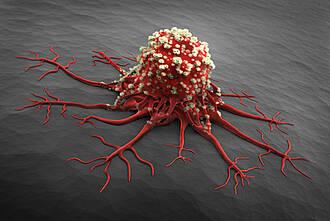 Krebszelle, Weichteilsarkom, Tumor, Tiefenhyperthermie