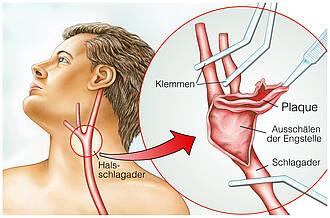 Carotisstenose: Schlaganfallgefahr durch verengte Halsschlagader