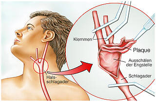 Verkalkte Halsschlagader