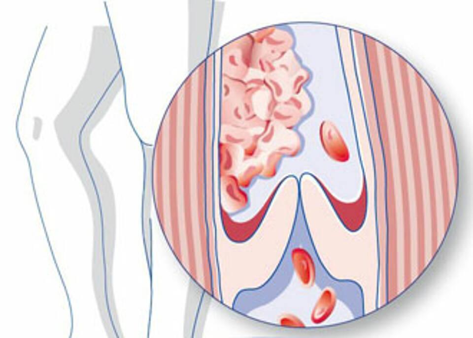 Thrombosen machen sich durch Schmerzen in der Wade, Schwellungen und Überwärmung der Beine bemerkbar. Oft leider zu spät