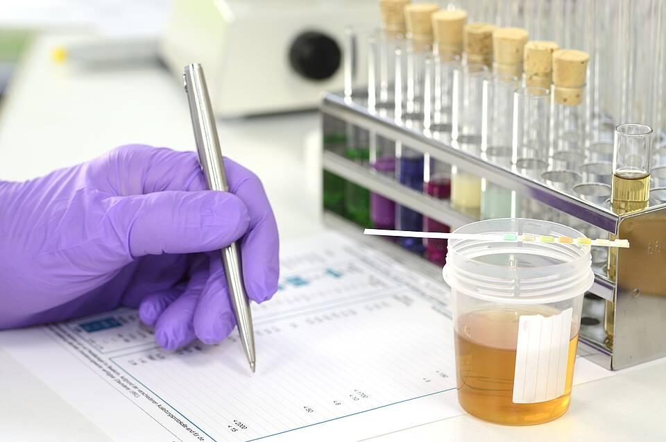 Kombination von Blut- und Urinwerten sagt schweren Covid-19-Verlauf voraus