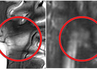 Multiple Sklerose zerstörerischer als bislang angenommen