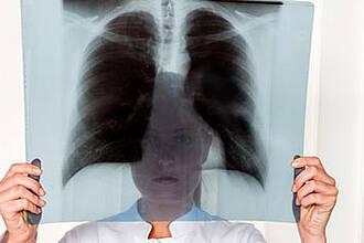Ansteckende Tuberkulose? Das RKI sieht in der verpflichtenden Thorax-Röntgenuntersuchung das Mittel der Wahl
