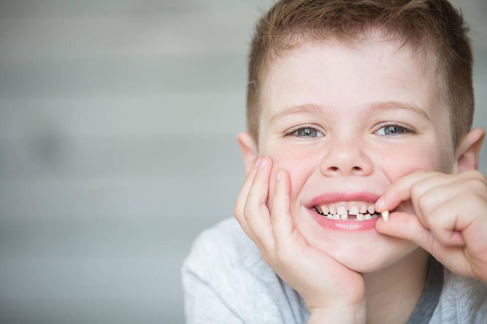 Kreidezähne treten vor allem an den bleibenden Backenzähnen auf, die mit sechs Jahren durchbrechen