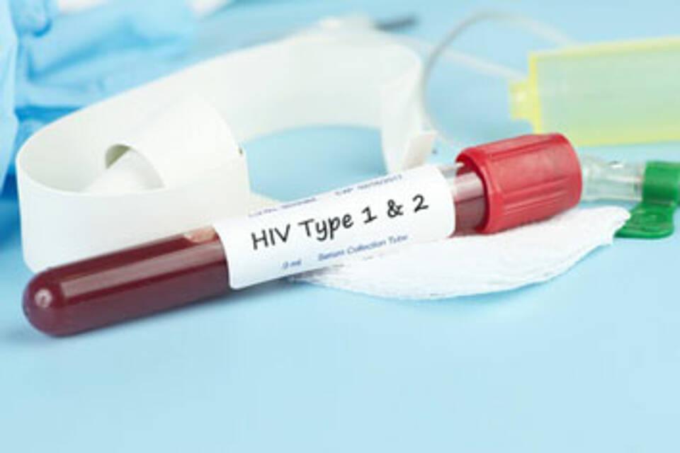 HIV-Tests sind schneller geworden: Die Sechs-Wochen-Frist gilt auch in den europäischen Leitlinien