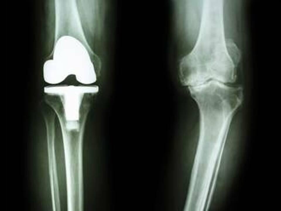 Im Kniegelenk wurde sie entdeckt: Eine Barriere aus Makrophagen, die vor Entzündungen schützt