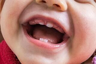 Milchzähne, Baby, Kleinkind, Zahnen