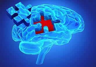 Parkinson: Neue Therapien sollen das Nervenzellsterben stoppen