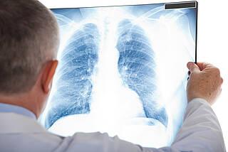Der MET-Inhibitor Capmatinib ist in den USA bereits zur Behandlung bestimmter Formen von Lungenkrebs zugelassen