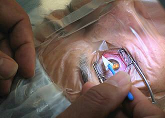 Stammzellen geben verlorenes Augenlicht zurück