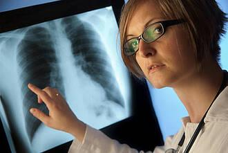 Chemoradiatio bei Lungenkrebs: Studie belegt leichten Überlebensvorteil
