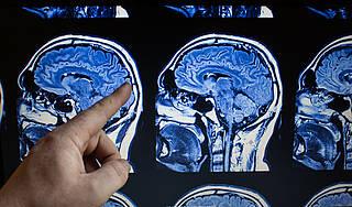 Herzschwäche geht mit verminderter Hirnleistung und einem verkleinerten Hippocampus einher