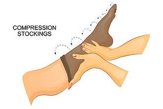 Kompressionsstrümpfe, Kompressionstherapie, G-BA, Venenerkrankungen, offenes Bein