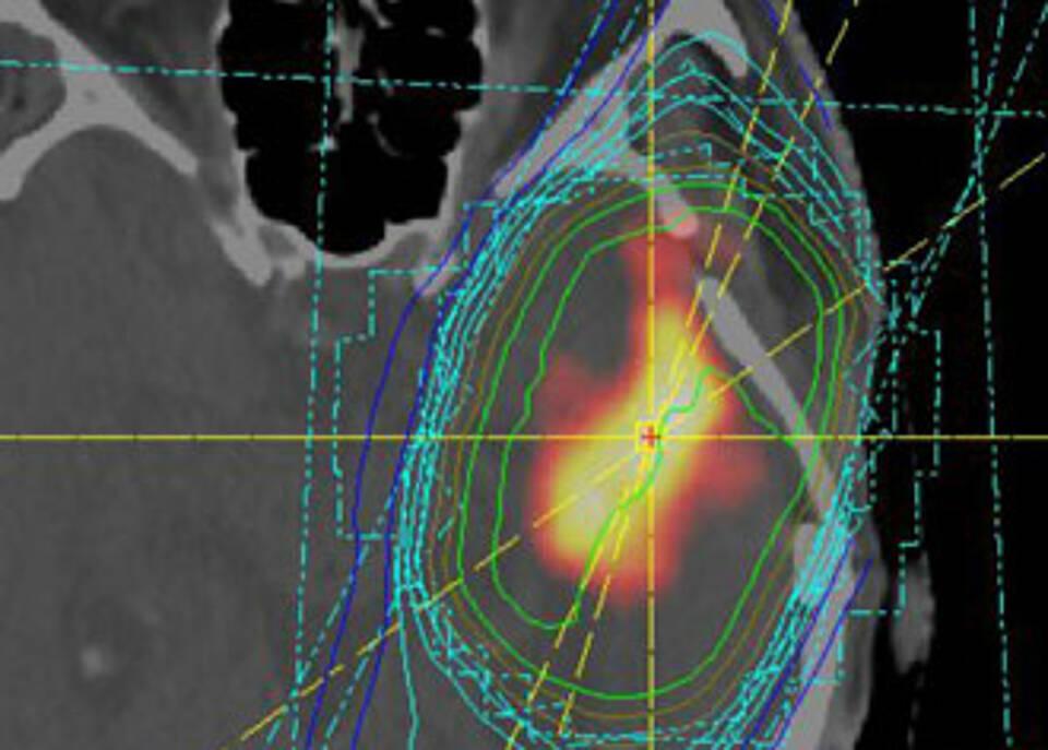 Bestrahlungsplan eines Glioblastoms: Krankheitsverlauf wird durch microRNAs leichter abschätzbar