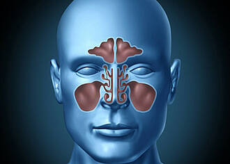 Antibiotika bei Nasennebenhöhlenentzündung umstritten