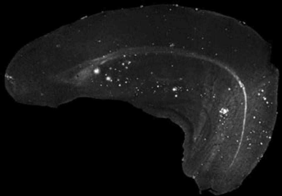 Alzheimer sichtbar gemacht: Ablagerungen des Amyloid-Beta-Proteins im Gehirn