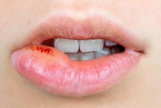 lippenherpes, herpes, herpes-viren, infektion, viren