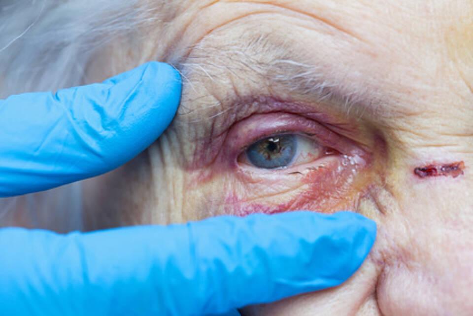 Gewalt gegen ältere Menschen ist äußerlich nicht immer sichtbar. Misshandlungen können noch viel subtiler sein