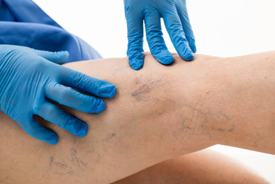 Krampfadern, Varizen, Gefäßleiden, herz-kreislauf-system, chirurgie