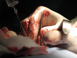 Aortenaneurysma operieren