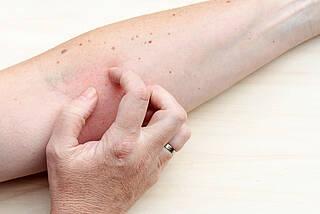 Hauttherapie muss seelische Erkrankungen berücksichtigen.