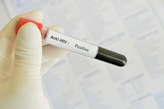 Auf HIV kann schon früh getestet werden