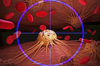 Krebszelle im Körper (mikroskopische Grafiksimulation) im Zentrum eines blauen Fadenkreuzes.