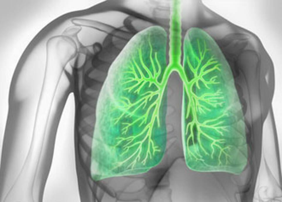 Lungenkrebspatienten profitieren von personalisierter Therapie