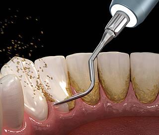 zähne, zahnreinigung, zahnarzt, zahnfleisch, parodontitis