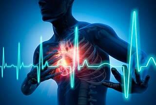 Bei instabiler Angina pectoris bahnt sich ein Herzinfarkt an, der aber bislang schwer zu diagnostizieren ist