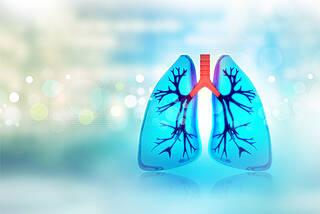 Lungenkrebs früher erkennen: Ein neuer Atemtest könnte bald das Diagnostikspektrum ergänzen