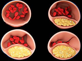 arterienverkalkung, atherosklerose, arteriosklerose