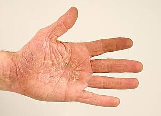 Hand-Fuß-Syndrom mit Urea-Creme behandeln