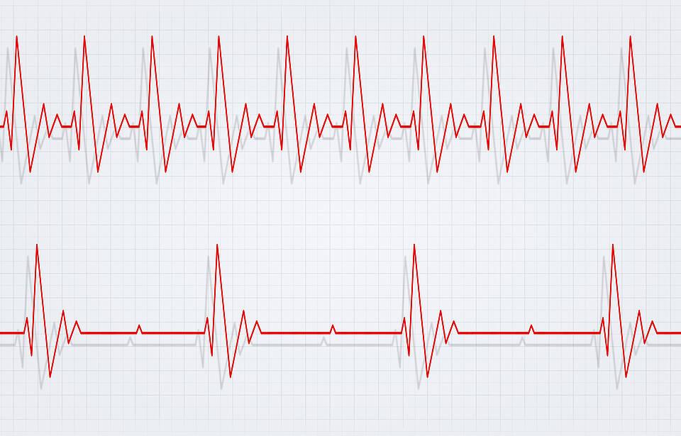 Bei Corona-Infizierten änderte sich die Herzfrequenz, zunächst verlangsamter Herzschlag (unten), dann beschleunigter Herzschlag (oben)