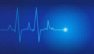 Zehn Tage EKG: Deutlich mehr Fälle von Vorhofflimmern entdeckt und Schlaganfälle verhindert
