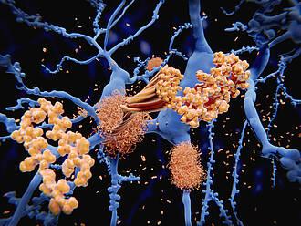 Der Alzheimer-Wirkstoffkandidat PRI-002 hat Grünes Licht für Phase-II-Studie bekommen, meldet das Forschungszentrum Jülich