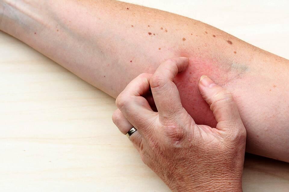 Neurodermitis: Frau kratzt sich an geröteter Hautpartie in der Ellenbeuge.